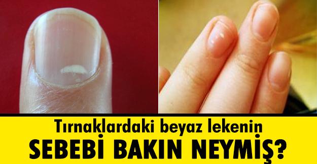 TIRNAKTAKİ BU LEKELERİN NEDENİ BAKIN NEYMİŞ..