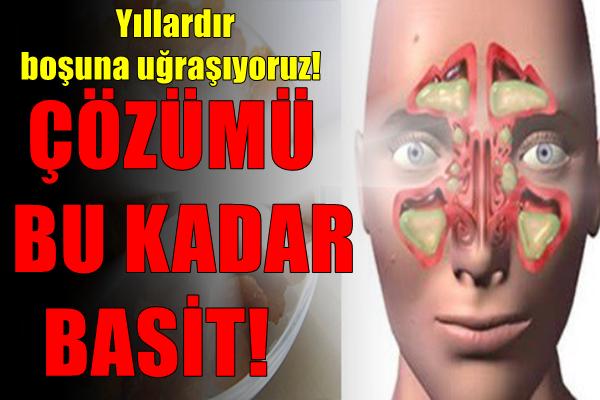 SİNÜZİT İÇİN EN DOĞAL ve KOLAY TEDAVİ.!