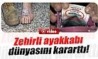 150 Liraya Aldığı Ayakkabılar Onu Bu Hale Getirdi