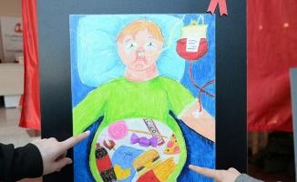 Çağın hastalığı obeziteyi resimlerine yansıttılar