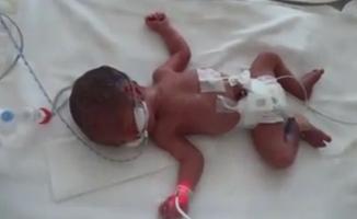 Kayseri Şehir Hastanesi'nin ilk dördüz bebekleri dünyaya geldi