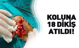 KOLUNA 18 DİKİŞ ATILDI!
