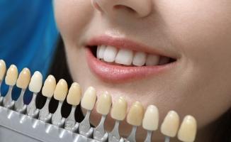 Dişleri beyazlatmada sosyal medya önerileri sağlığınıza zarar verebilir