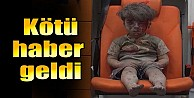 Suriye'nin sembol çocuğu Ümran'dan kötü haber!