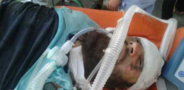 Türkiye Sınırında Patlama: 40 ölü, 60 Yaralı