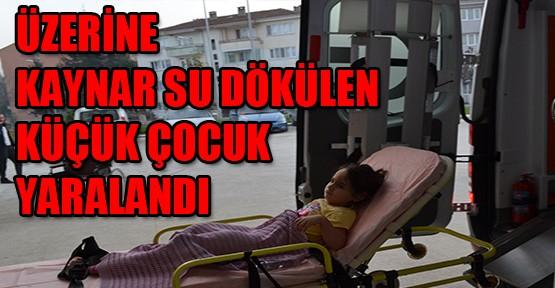 Üzerine Kaynar Su Dökülen Küçük Çocuk Yaralandı